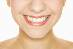 Should you get a dental implant