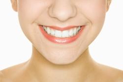 Should you get a dental implant