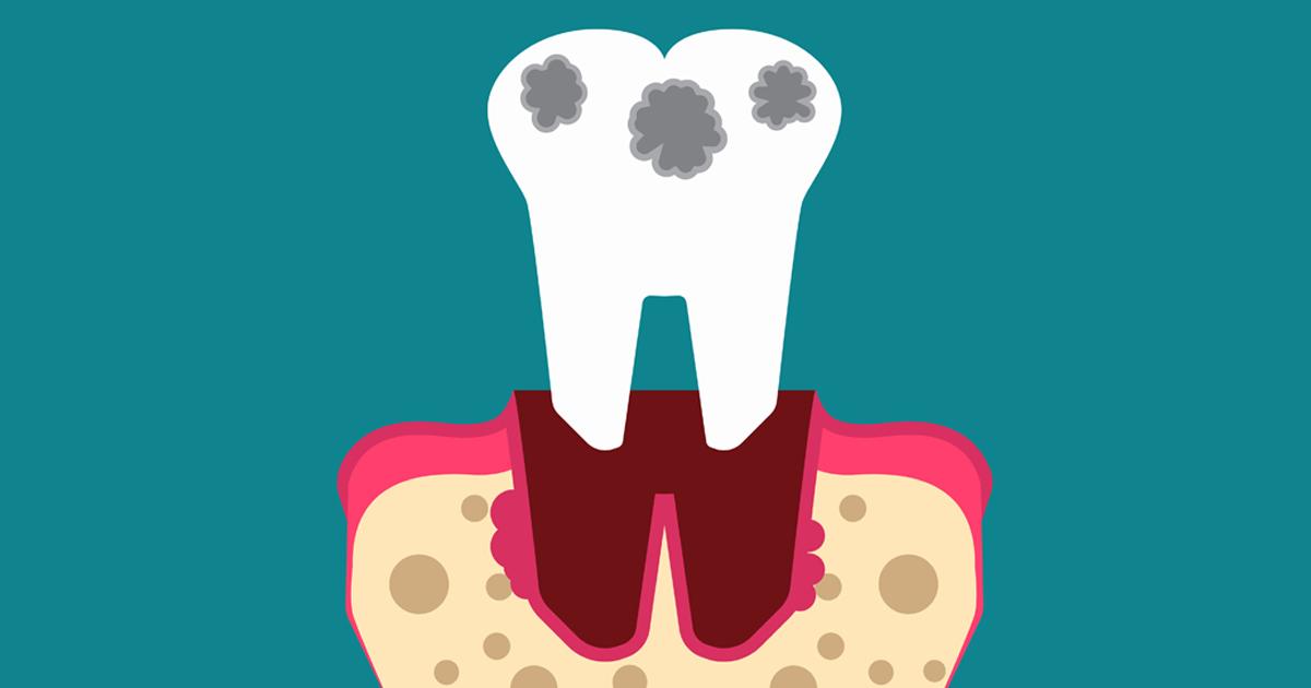 dca-blog_article-11_risk-of-gingivitis_1200x630