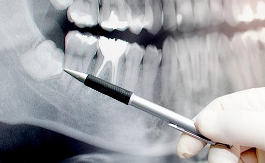 dca-blog_recognizing-impacted-wisdom-teeth